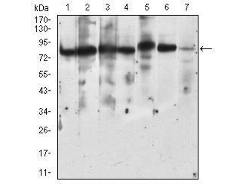 Western Blotting (WB) image for anti-Ribosomal Protein S6 Kinase, 90kDa, Polypeptide 2 (RPS6KA2) (AA 415-734) antibody (ABIN4881243)