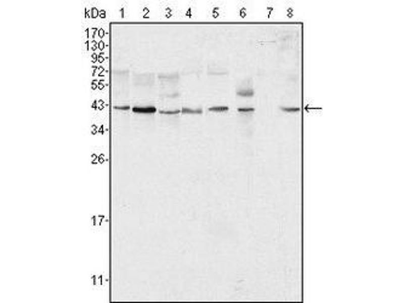 Western Blotting (WB) image for anti-ERK2 Antikörper (Mitogen-Activated Protein Kinase 1) (ABIN258758)