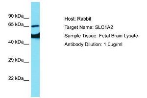 anti-Solute Carrier Family 1 (Glial High Affinity Glutamate Transporter), Member 2 (SLC1A2) (N-Term) antibody (3)
