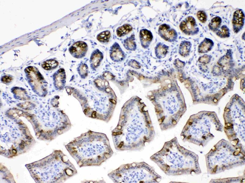 Immunohistochemistry (IHC) image for anti-Keratin 18 (KRT18) (AA 204-430) antibody (ABIN5518769)