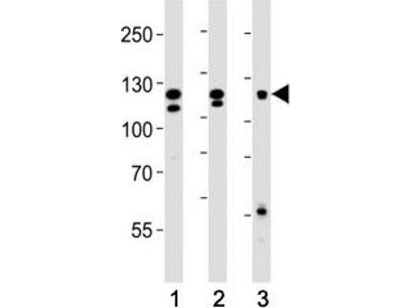 Western Blotting (WB) image for anti-FGFR2 antibody (Fibroblast Growth Factor Receptor 2) (AA 7-37) (ABIN3030951)