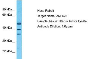 Image no. 1 for anti-Zinc Finger Protein 528 (ZNF528) (Middle Region) antibody (ABIN2783024)