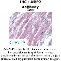 anti-ARPC1B anticorps (Actin Related Protein 2/3 Complex, Subunit 1B, 41kDa) (AA 40-311)