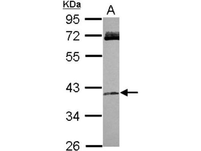 Western Blotting (WB) image for anti-RASSF4 antibody (Ras Association (RalGDS/AF-6) Domain Family Member 4) (Center) (ABIN4349453)