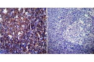 Immunohistochemistry (IHC) image for anti-Nuclear Factor of Activated T-Cells, Cytoplasmic, Calcineurin-Dependent 1 (NFATC1) (AA 1-654) antibody (ABIN152773)