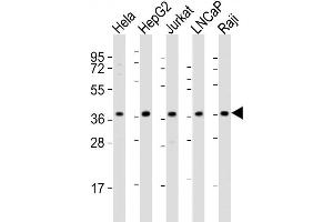 Image no. 4 for anti-DNA Fragmentation Factor, 40kDa, beta Polypeptide (Caspase-Activated DNase) (DFFB) (AA 1-30), (N-Term) antibody (ABIN653798)