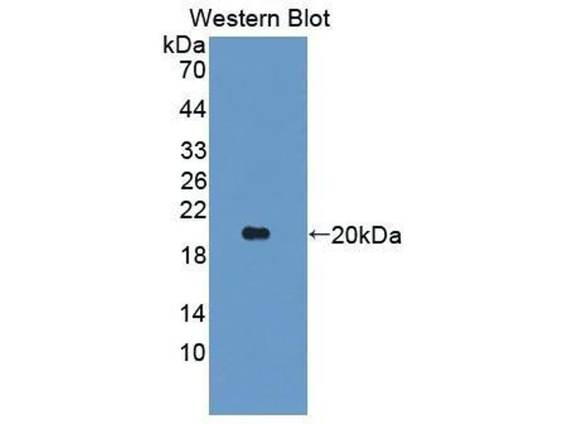 Western Blotting (WB) image for anti-Angiopoietin-Like 2 (ANGPTL2) (AA 47-207) antibody (ABIN1175213)
