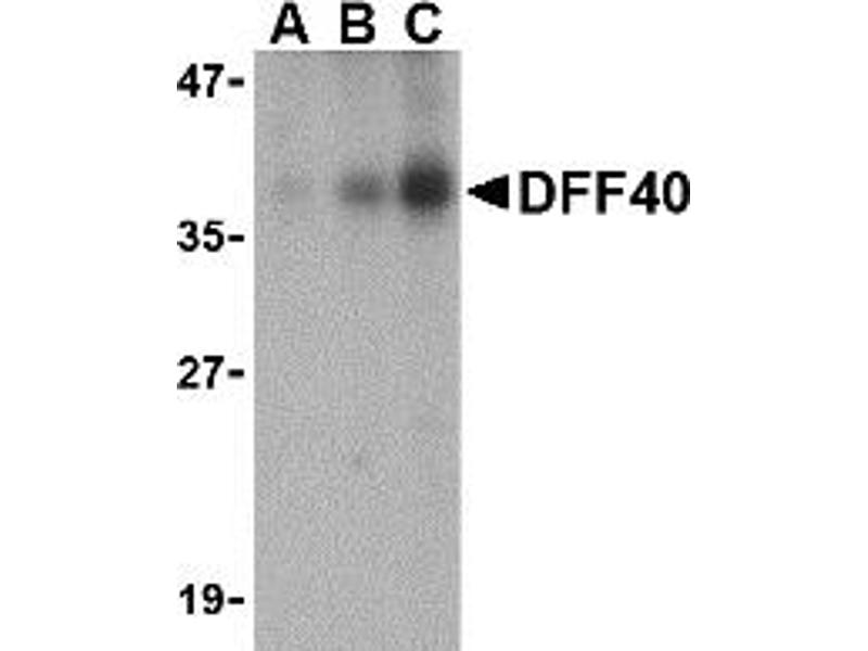 Western Blotting (WB) image for anti-DFFB antibody (DNA Fragmentation Factor, 40kDa, beta Polypeptide (Caspase-Activated DNase)) (AA 203-218) (ABIN2156249)