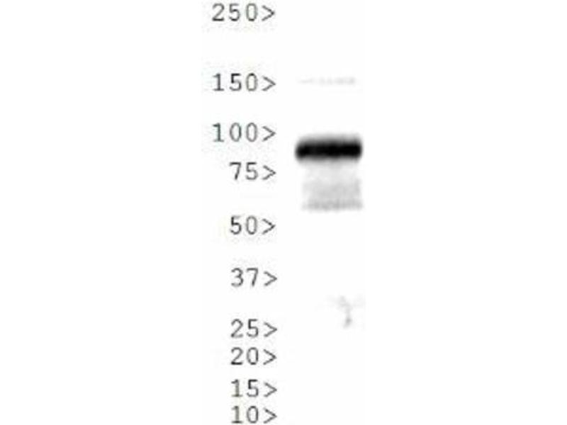 Western Blotting (WB) image for anti-Aryl Hydrocarbon Receptor Nuclear Translocator (ARNT) antibody (ABIN151037)