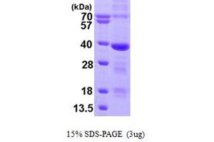 Image no. 1 for Mediator Complex Subunit 4 (MED4) (AA 1-270) protein (His tag) (ABIN666993)