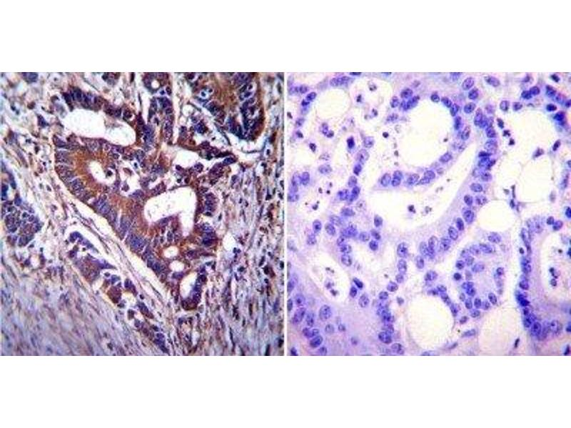 Immunohistochemistry (Paraffin-embedded Sections) (IHC (p)) image for anti-CFTR antibody (Cystic Fibrosis Transmembrane Conductance Regulator (ATP-Binding Cassette Sub-Family C, Member 7)) (AA 103-117) (ABIN152670)