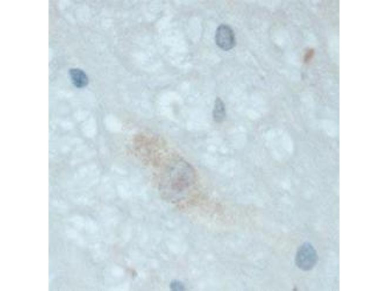 Immunohistochemistry (IHC) image for anti-Neurotrophic tyrosine Kinase, Receptor, Type 3 (NTRK3) (AA 50-150) antibody (ABIN409292)