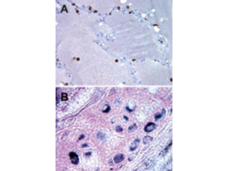 Immunohistochemistry (Paraffin-embedded Sections) (IHC (p)) image for anti-Transmembrane BAX Inhibitor Motif Containing 6 (TMBIM6) (C-Term), (Internal Region), (N-Term) antibody (ABIN4283179)
