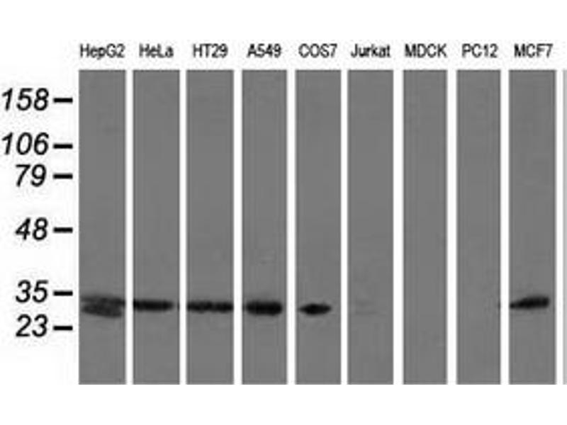 Western Blotting (WB) image for anti-Sepiapterin Reductase (SPR) antibody (ABIN2453682)