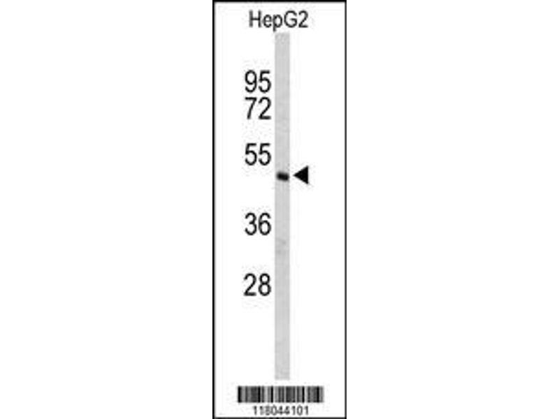 Western Blotting (WB) image for anti-CASP8 and FADD-Like Apoptosis Regulator (CFLAR) (AA 145-174), (Center) antibody (ABIN653068)