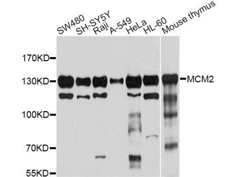 Image no. 1 for anti-Minichromosome Maintenance Complex Component 2 (MCM2) antibody (ABIN3021315)