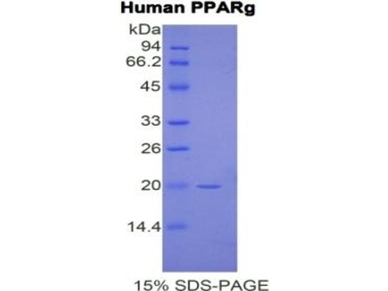 Peroxisome Proliferator-Activated Receptor gamma (PPARG) ELISA Kit (2)