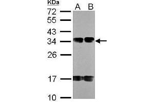 Image no. 1 for anti-N-Acetyltransferase 6 (GCN5-Related) (NAT6) (C-Term) antibody (ABIN2855875)