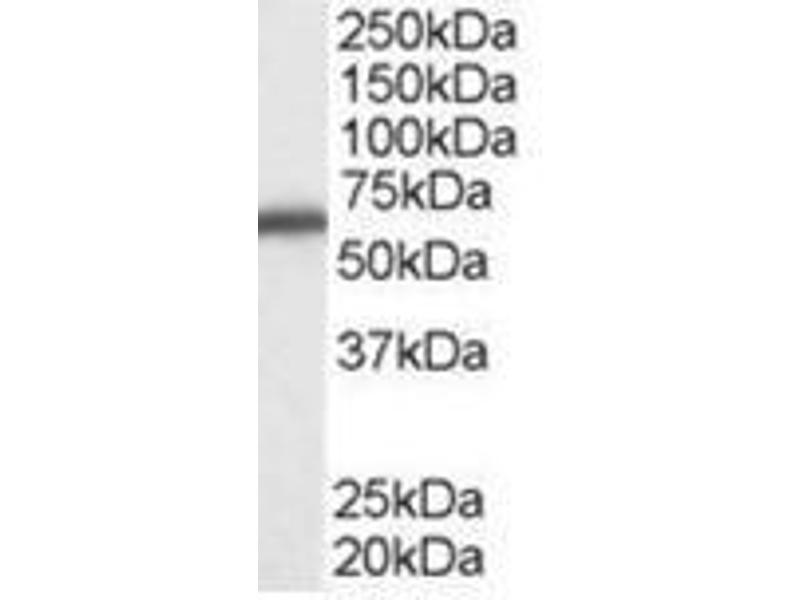 Image no. 1 for anti-DEAD (Asp-Glu-Ala-Asp) Box Polypeptide 5 (DDX5) (C-Term) antibody (ABIN782938)