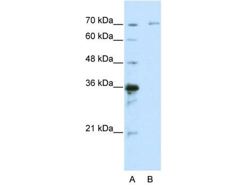 Western Blotting (WB) image for anti-Interleukin-1 Receptor-Associated Kinase 3 (IRAK3) (C-Term) antibody (ABIN2779025)