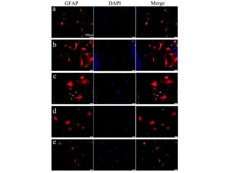 image for anti-Glial Fibrillary Acidic Protein (GFAP) (AA 30-80) antibody (ABIN726200)