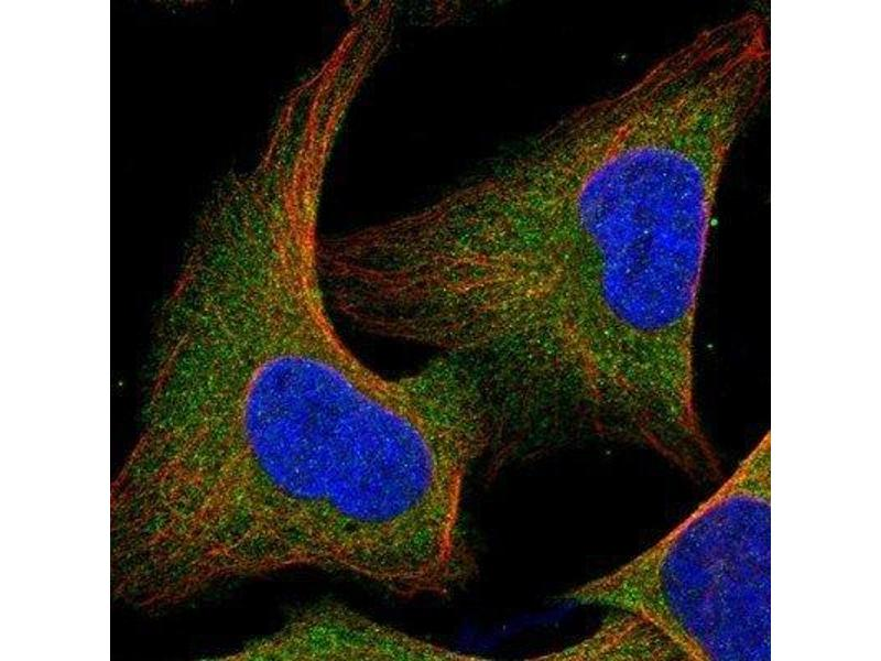 Immunofluorescence (IF) image for anti-CBL antibody (Cas-Br-M (Murine) Ecotropic Retroviral Transforming Sequence) (ABIN4288402)