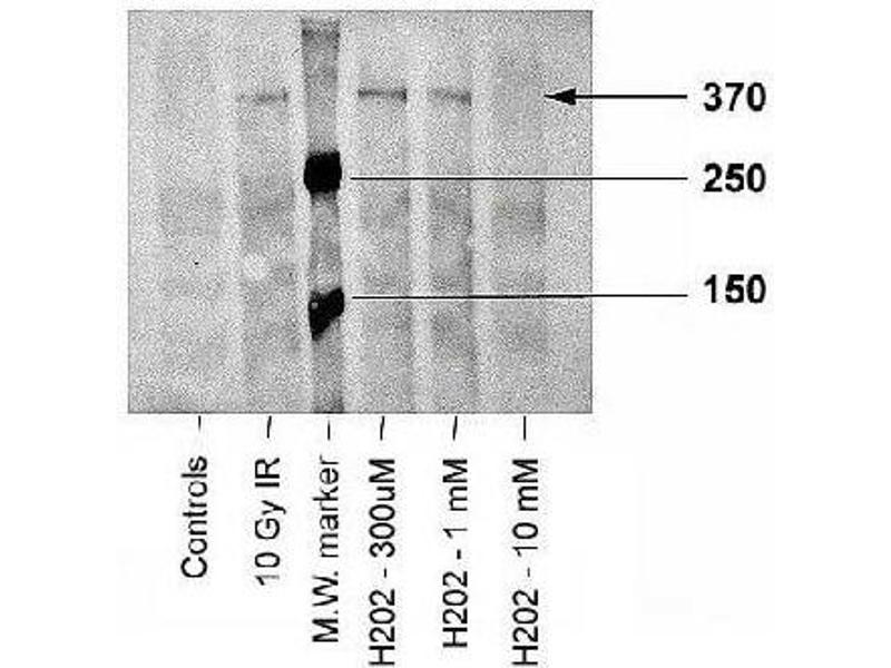 Western Blotting (WB) image for anti-Ataxia Telangiectasia Mutated (ATM) (pSer1981) antibody (ABIN151772)