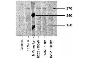 Western Blotting (WB) image for anti-ATM antibody (Ataxia Telangiectasia Mutated) (pSer1981) (ABIN251422)