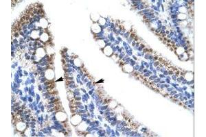 Image no. 1 for anti-Zinc Finger Protein 12 (ZNF12) (AA 73-122) antibody (ABIN202669)