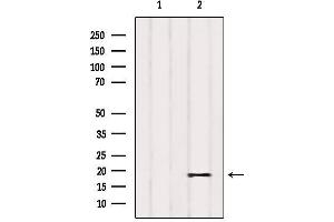 Image no. 2 for anti-Phosphatidylinositol Glycan Anchor Biosynthesis, Class P (PIGP) antibody (ABIN6264206)
