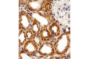 Image no. 3 for anti-F-Box and Leucine-Rich Repeat Protein 17 (FBXL17) (AA 262-297), (C-Term), (Isoform 2) antibody (ABIN5535621)