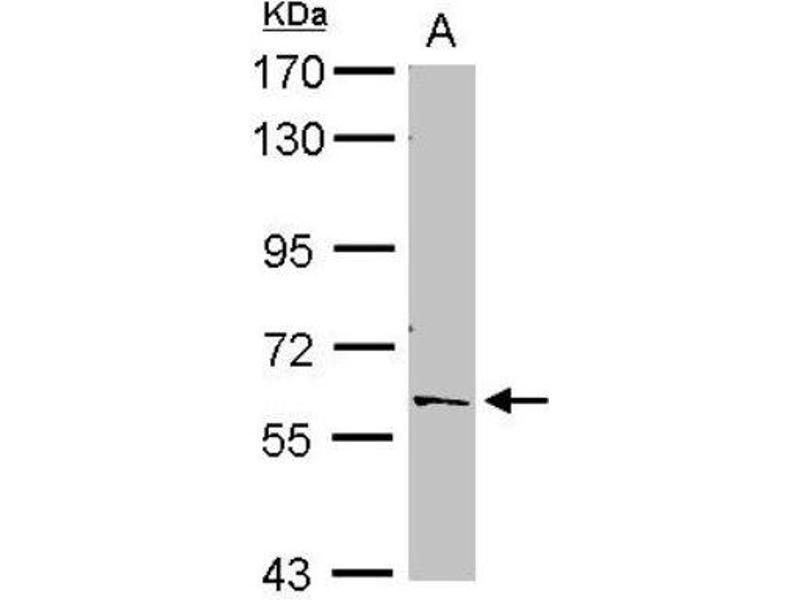 Western Blotting (WB) image for anti-Polypyrimidine Tract Binding Protein 2 (PTBP2) (C-Term) antibody (ABIN4348343)