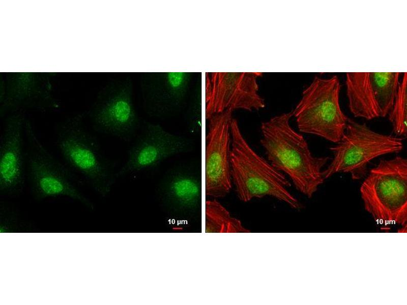 Immunofluorescence (IF) image for anti-E2F1 antibody (E2F Transcription Factor 1) (Center) (ABIN2854981)