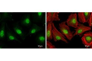 Immunofluorescence (IF) image for anti-E2F Transcription Factor 1 (E2F1) (Center) antibody (ABIN2854981)