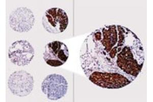 Immunohistochemistry (Paraffin-embedded Sections) (IHC (p)) image for anti-BCL2 antibody (B-Cell CLL/lymphoma 2) (ABIN4283367)