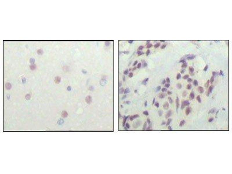 Immunohistochemistry (Paraffin-embedded Sections) (IHC (p)) image for anti-Nuclear Receptor Co-Repressor 1 (NCOR1) antibody (ABIN449935)