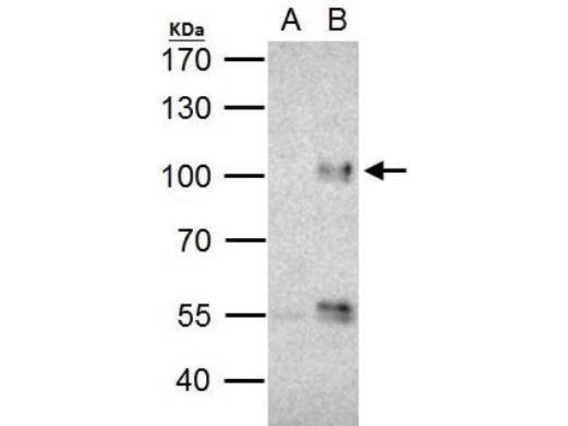 Immunoprecipitation (IP) image for anti-Forkhead Box O3 (FOXO3) (C-Term) antibody (ABIN4312377)