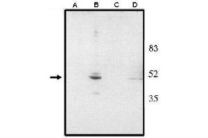 Image no. 1 for anti-Visual System Homeobox 2 (VSX2) (AA 1-131), (N-Term) antibody (ABIN265011)