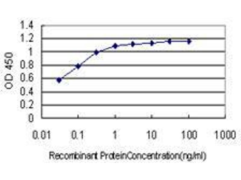 Immunohistochemistry (IHC) image for anti-B-Cell CLL/lymphoma 9 (BCL9) (AA 1036-1136) antibody (ABIN395513)