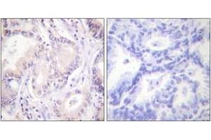Image no. 2 for anti-Cell Division Cycle 6 Homolog (S. Cerevisiae) (CDC6) (AA 20-69), (pSer54) antibody (ABIN1531262)