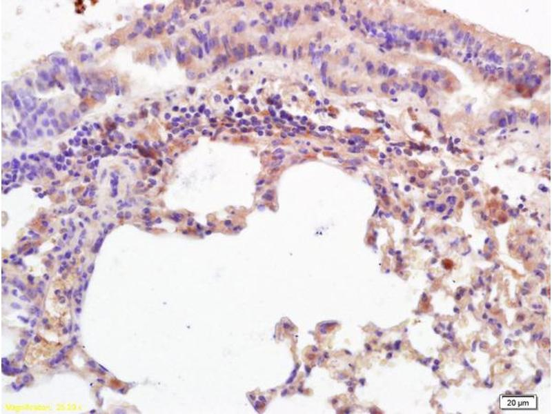 Immunohistochemistry (IHC) image for anti-MHC Class I Polypeptide-Related Sequence A (MICA) (AA 120-170) antibody (ABIN728788)