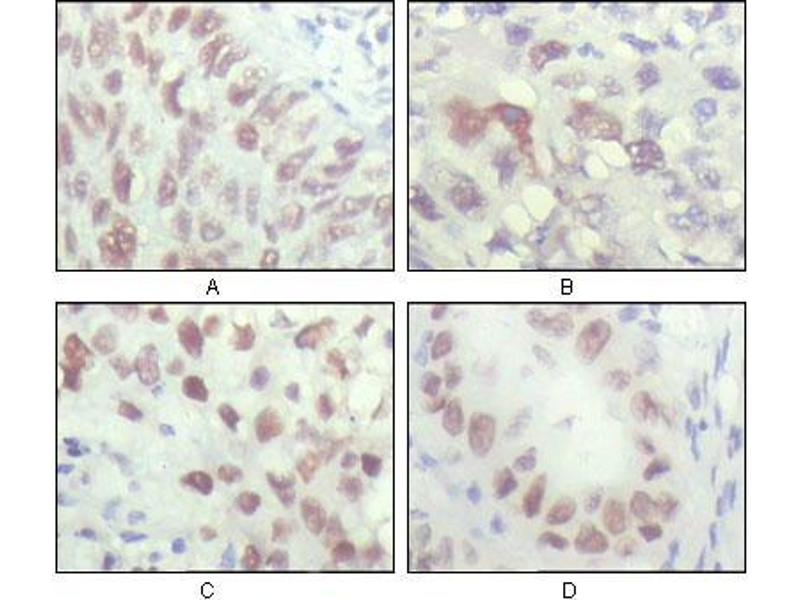 Immunohistochemistry (IHC) image for anti-Checkpoint Kinase 2 (CHEK2) (AA 481-531) antibody (ABIN1724714)