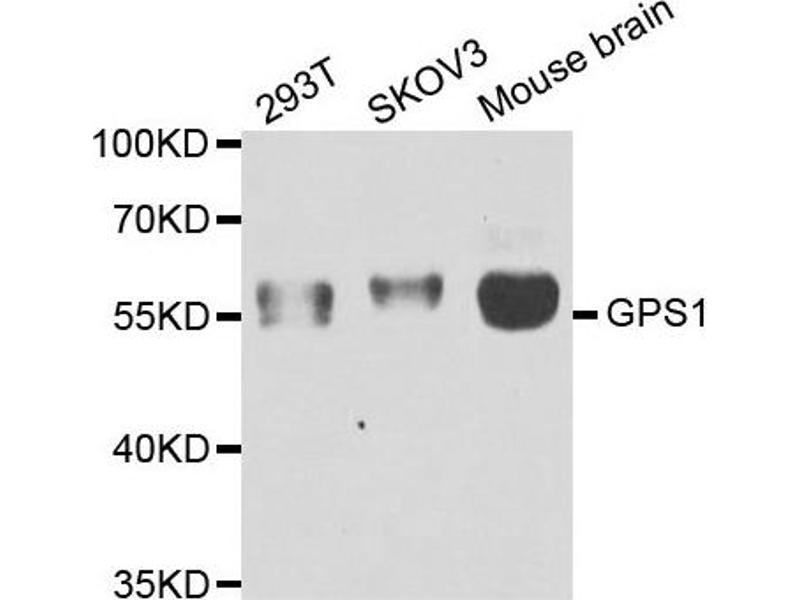 Image no. 2 for anti-G Protein Pathway Suppressor 1 (GPS1) antibody (ABIN2562914)