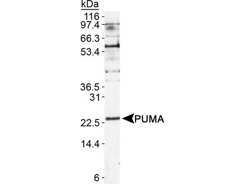 Western Blotting (WB) image for anti-BCL2 Binding Component 3 (BBC3) (AA 1-100), (Isoform 1), (N-Term) antibody (ABIN259765)