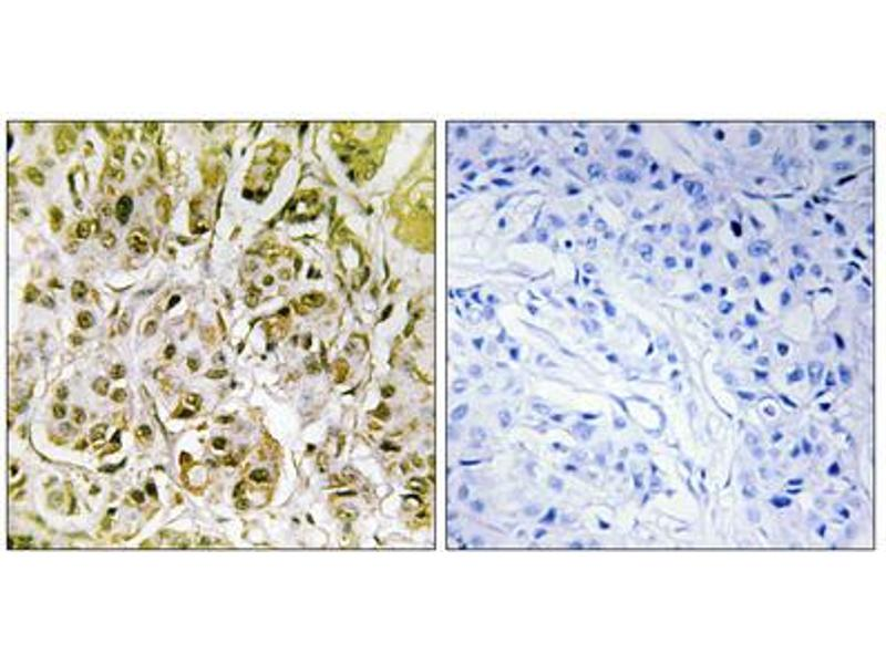 Image no. 3 for anti-SMAD, Mothers Against DPP Homolog 1 (SMAD1) (pSer187) antibody (ABIN1847368)