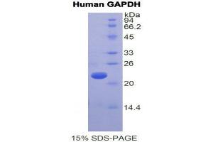 Image no. 1 for Glyceraldehyde-3-Phosphate Dehydrogenase (GAPDH) (AA 154-324) protein (His tag) (ABIN1878357)