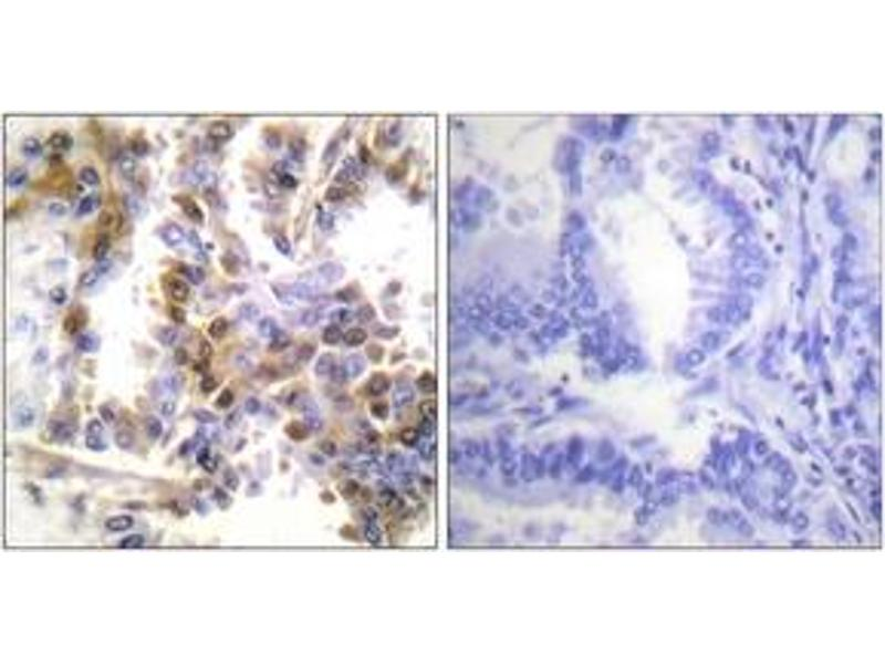 Immunohistochemistry (IHC) image for anti-Eukaryotic Translation Initiation Factor 4E Binding Protein 1 (EIF4EBP1) (AA 2-51) antibody (ABIN1532584)