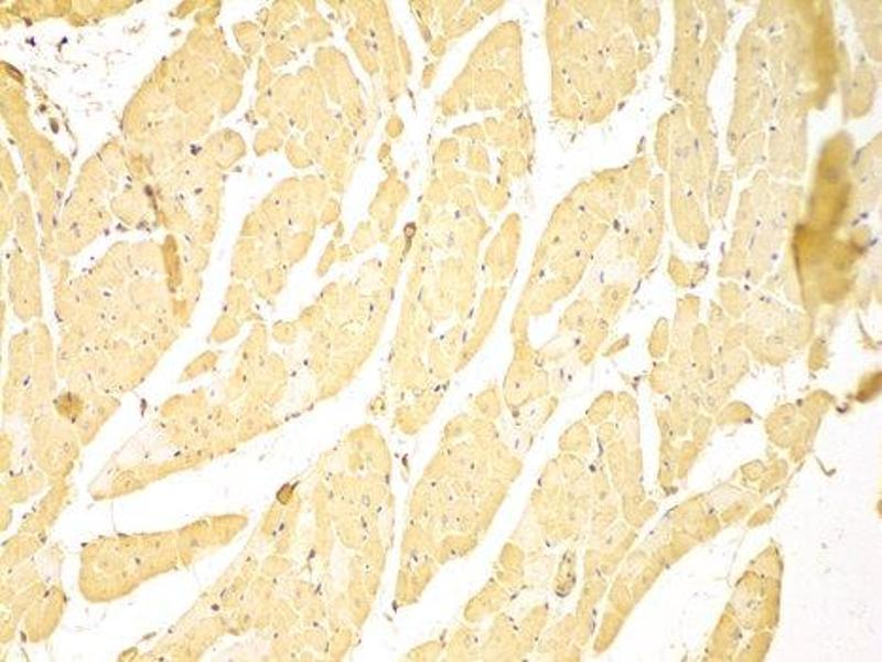 Immunohistochemistry (IHC) image for anti-Baculoviral IAP Repeat Containing 2 (BIRC2) antibody (ABIN1871293)