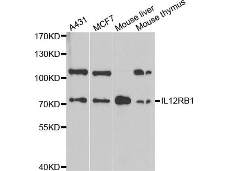 Image no. 1 for anti-Interleukin 12 Receptor beta 1 (IL12RB1) antibody (ABIN6568961)