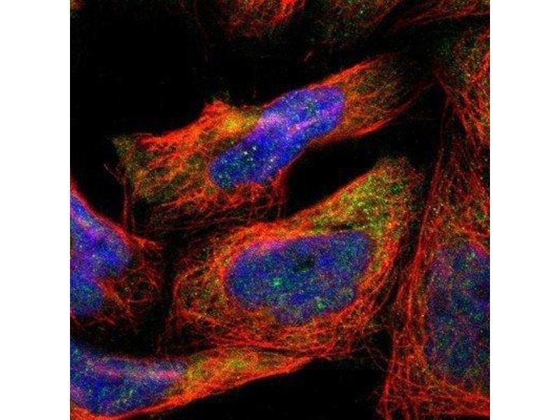 Immunofluorescence (IF) image for anti-Aldehyde Dehydrogenase 1 Family, Member A2 (ALDH1A2) antibody (ABIN4279209)